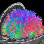 Multicoloured image of brain showing functional connectivity