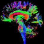 Magnetic resonance image of an infants brain